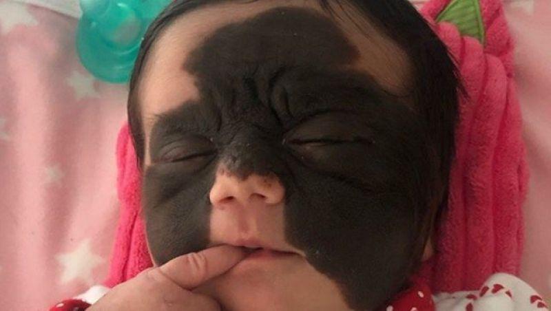 Mãe divulga rara condição da filha: 'Que o mundo aprenda a não agir com preconceito'