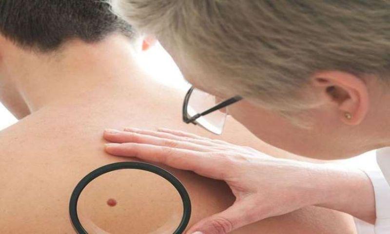 A retirada de tumores cutâneos não precisa ser um bicho de sete cabeças