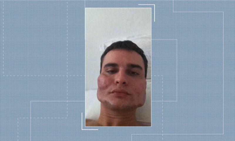 Médico condenado por deformar rostos cobrava até R$ 7 mil