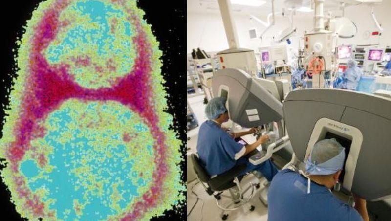 Vírus que mata todo tipo de câncer começa a ser testado em humanos