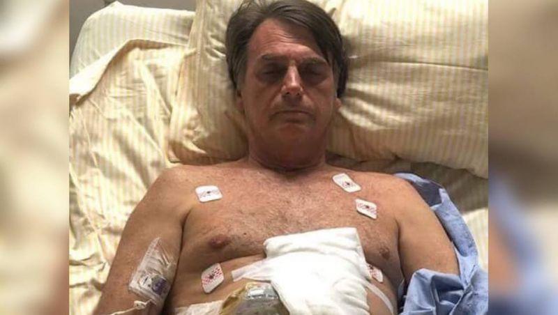 Bolsonaro passa por procedimento para drenagem de líquido no abdômen