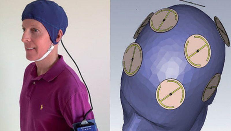 Memória perdida por Alzheimer é recuperada com chapéu magnético