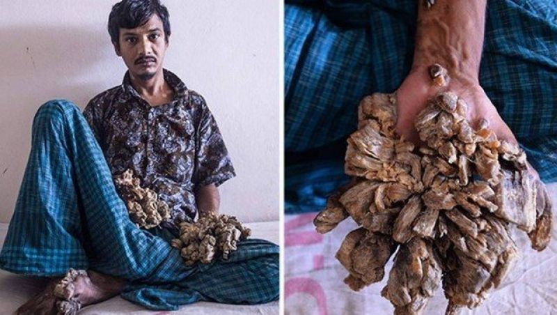 'Homem-árvore' quer as mãos amputadas após doença voltar