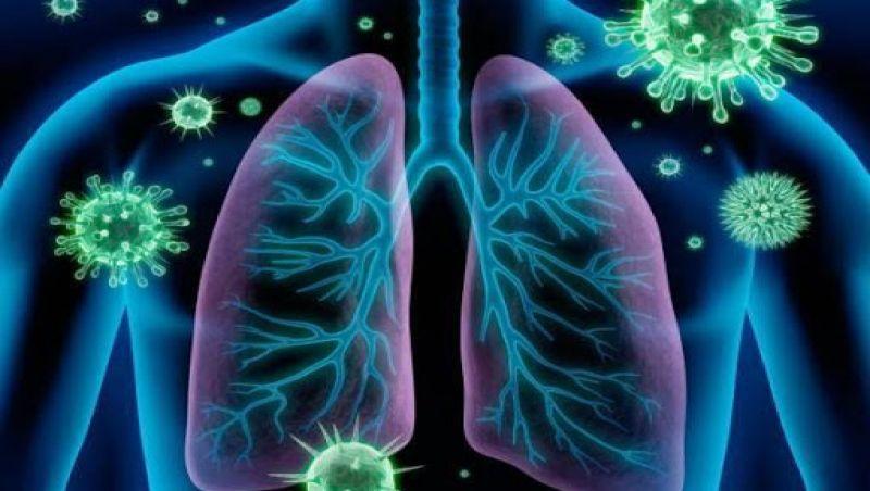 Minas é o 2º Estado com mais internações por síndrome respiratória aguda grave
