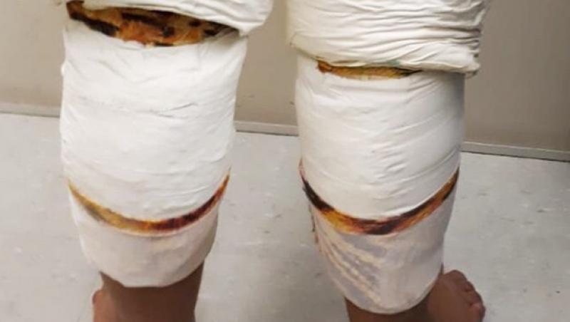 Mulher é presa ao embarcar com cocaína amarrada ao corpo em Confins