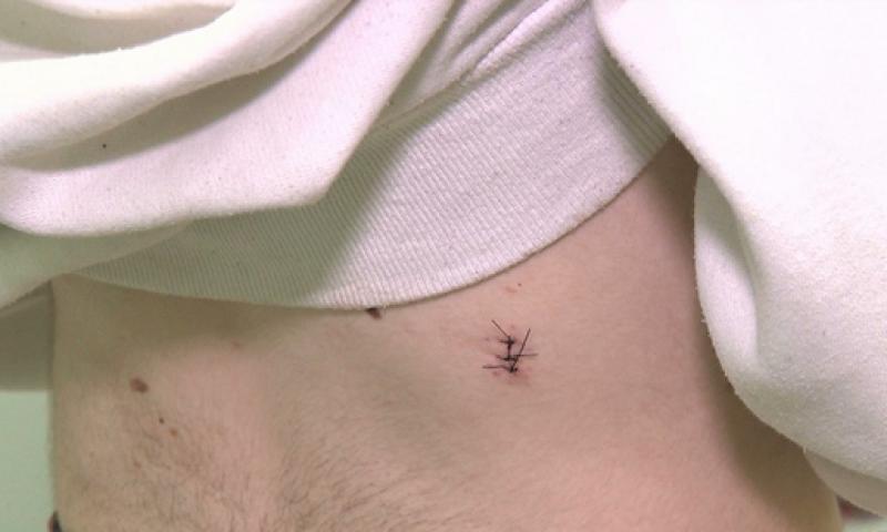 Sobe para 29 o número de feridos por agulhas no São João 2018 de Campina Grande
