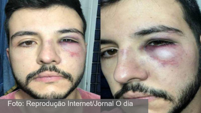 Repórter Matheus Ribeiro leva soco ao reagir a assalto