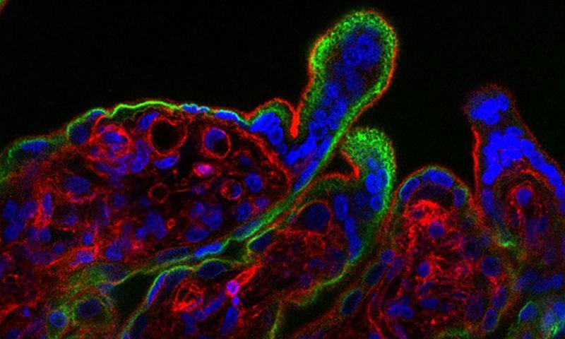 Resposta imunológica ao zika também pode ser causa da microcefalia, sugere pesquisa