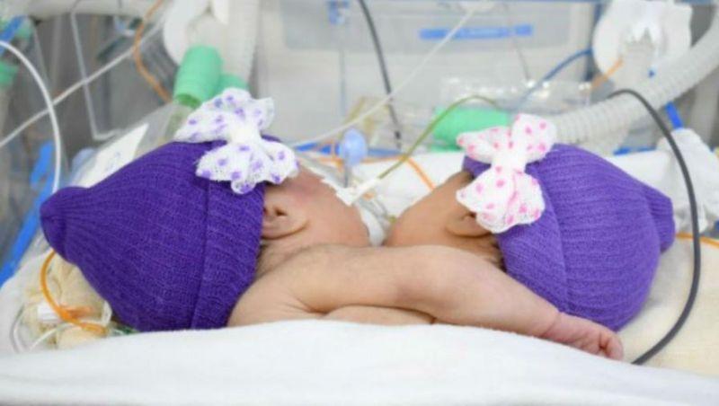 Gêmeas siamesas morrem após parada cardiorrespiratória em MS