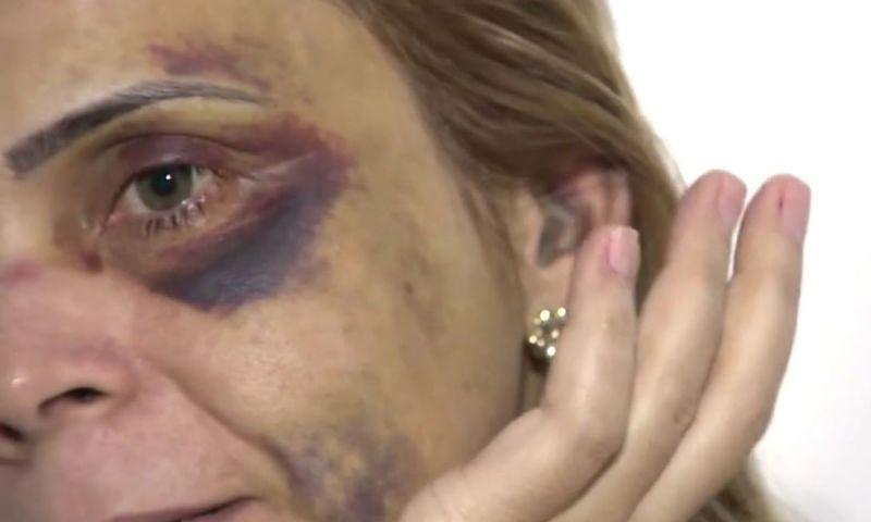Laudos confirmam que ex-namorada de humorista foi agredida