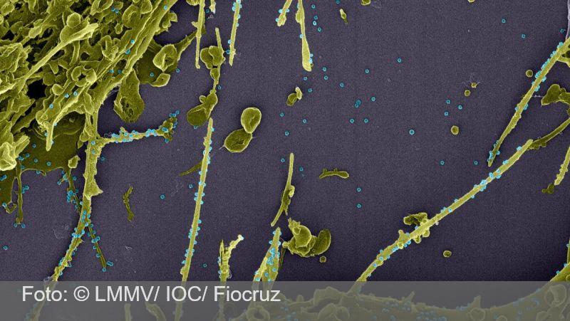 Anticorpos contra covid-19 duram pelo menos sete meses, mostra estudo