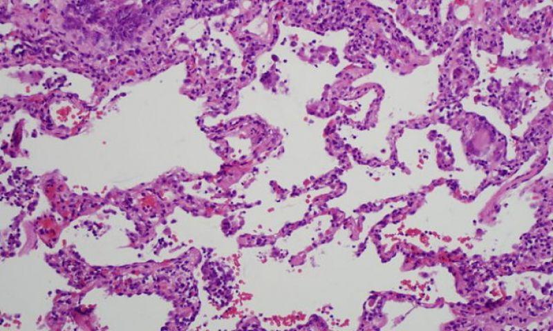 Cientistas anunciam a descoberta de um novo órgão do corpo humano, o interstício