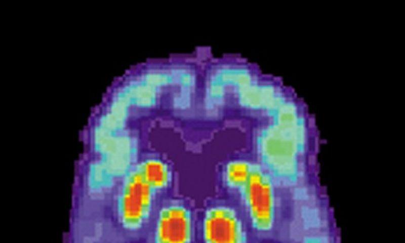 Teste para detectar predisposição ao Alzheimer provoca polêmica