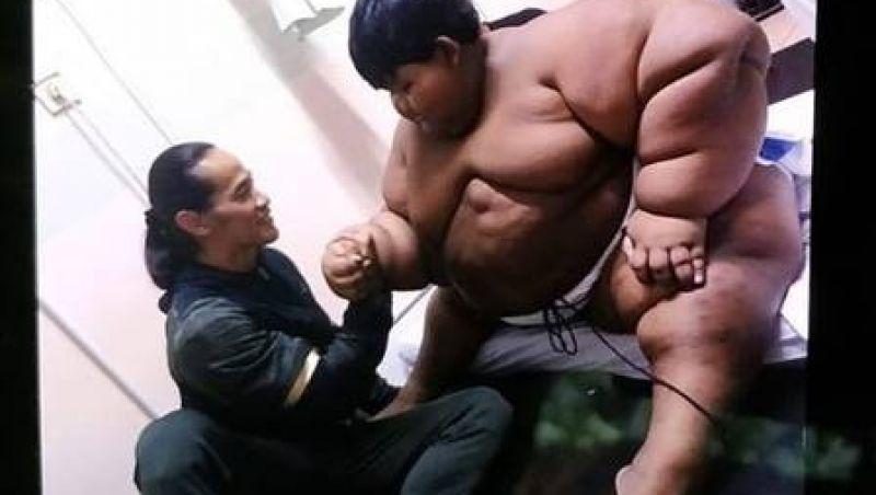 Menino que pesava 190kg muda hábitos e elimina 110kg; confira
