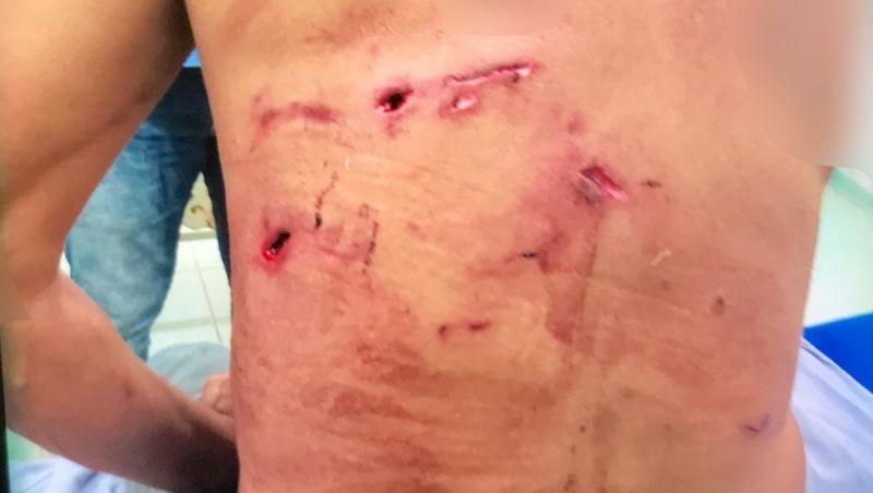 Homem atacado por onça-pintada é salvo por 5 cachorros em MS