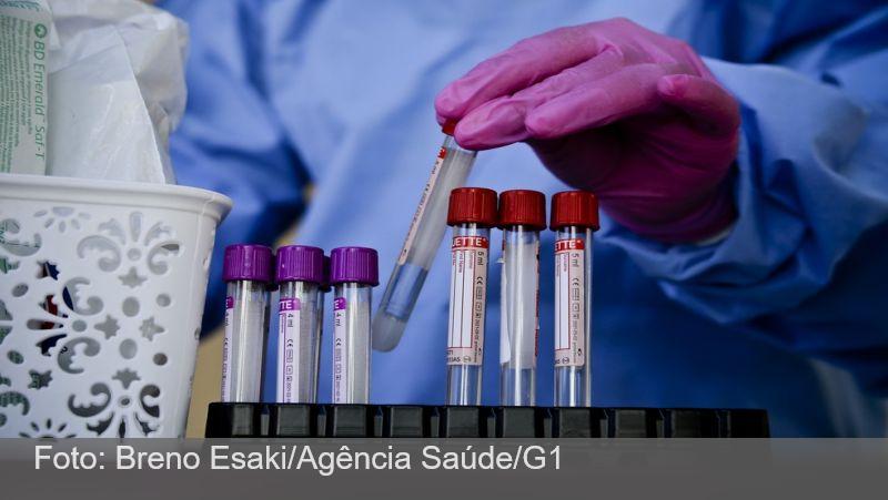 Parceria entre Prefeitura e UFJF viabiliza quase 6 mil testes de Covid-19 para pacientes de Juiz de Fora