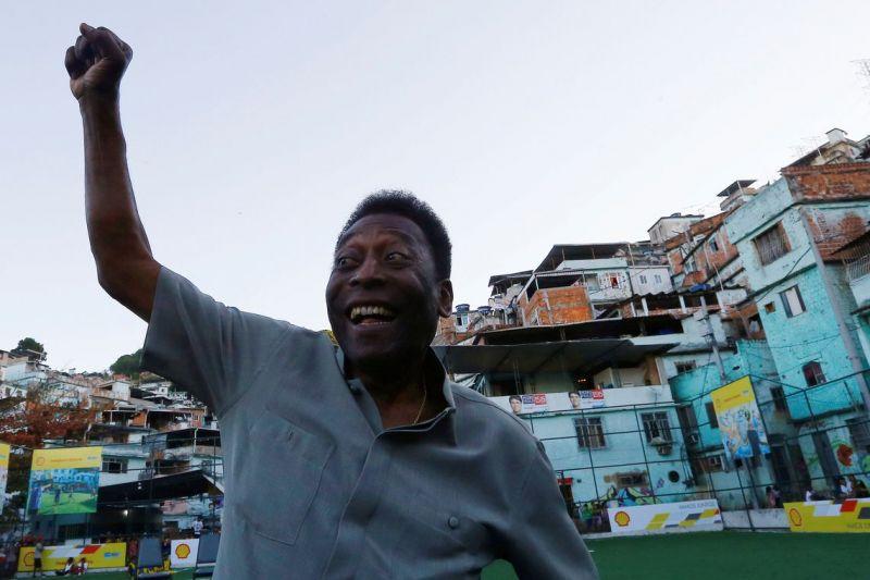 Exames detectam cálculo em ureter esquerdo de Pelé
