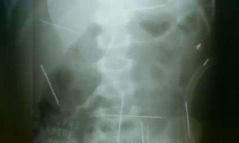 Após 9 anos, menino ainda convive com 4 agulhas dentro do corpo