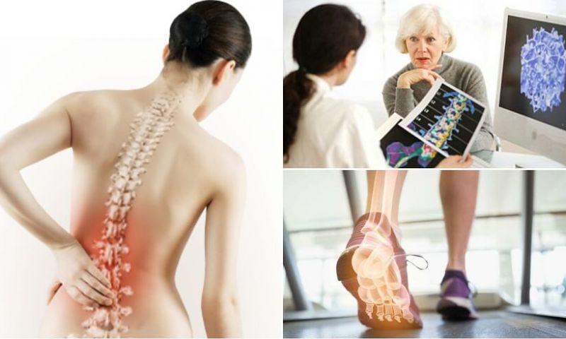 6 fatos sobre a osteoporose que é importante conhecer