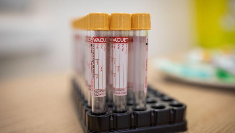 Plataforma faz monitoramento remoto de pacientes com covid-19