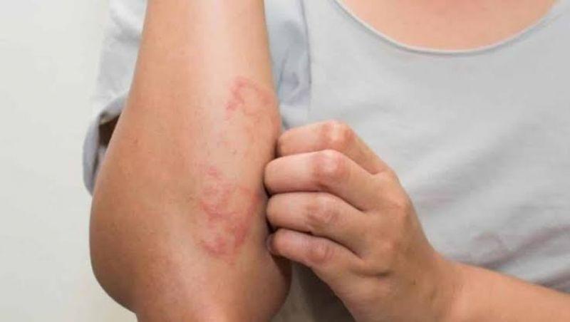 Dia Mundial da Hanseníase destaca importância do tratamento