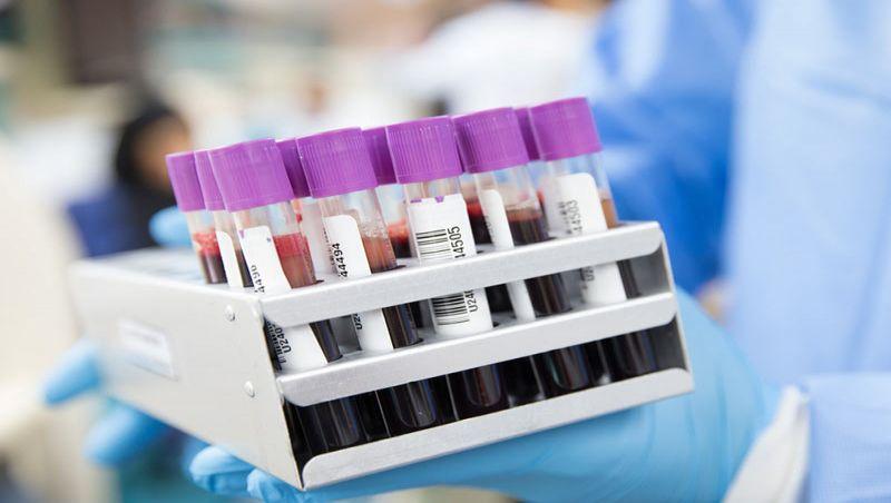 Albert Einstein e Sírio Libanês farão testes com sangue de curados: covid