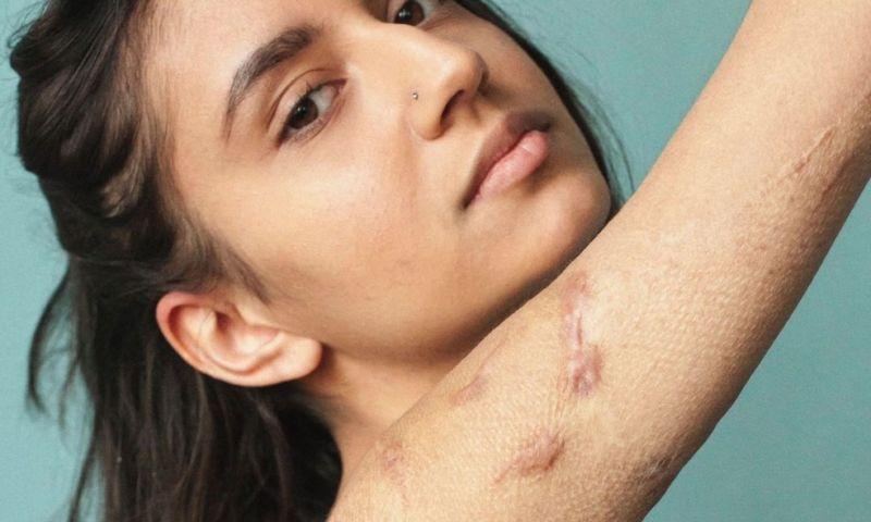 'Amo minhas cicatrizes, elas são parte de mim'