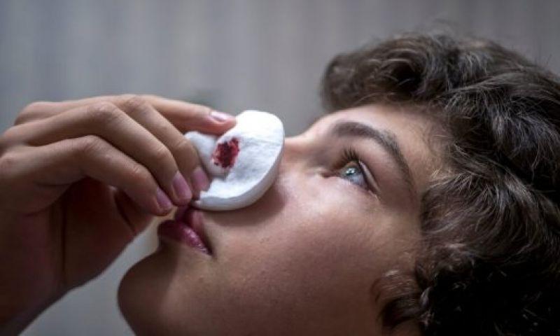 Hemorragia nasal: remédios que ajudam a detê-la